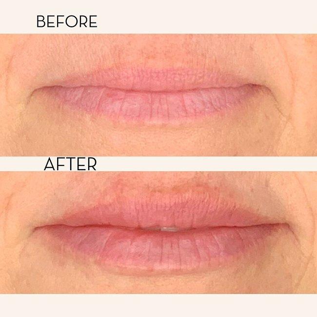 Lips 4