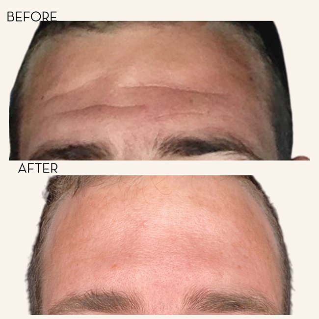 Botox Wrinkle Relaxer Treatments