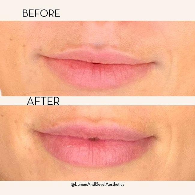 Lips 12