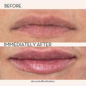 best lip fillers near me